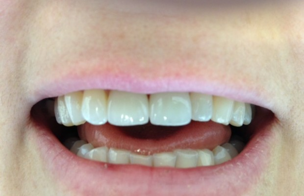 Front teeth presentation after treatment