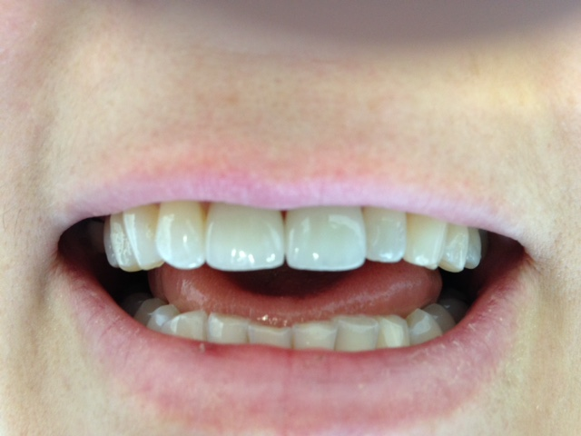 AFTER TREATMENT :: Discoloured and chipped upper two front teeth, restored with E-Max all ceramic (metal free crowns) to improve appearance.