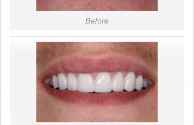 tooth_grinding_veneers_1