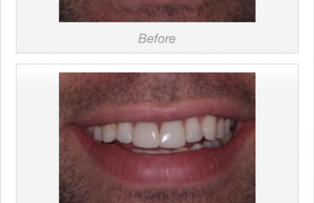 tooth_whitening_2