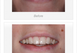 Before & After :: Different Dental Procedures & Treatments